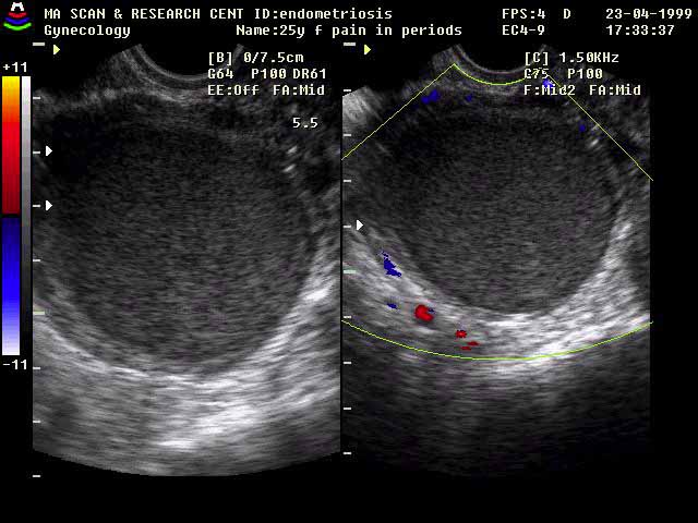 Endometriosis, an Ultra Sound Teaching file